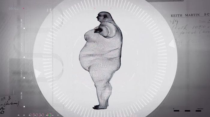 x ray fat person, рентген 400 кг, кейт мартин, x ray keith martin
