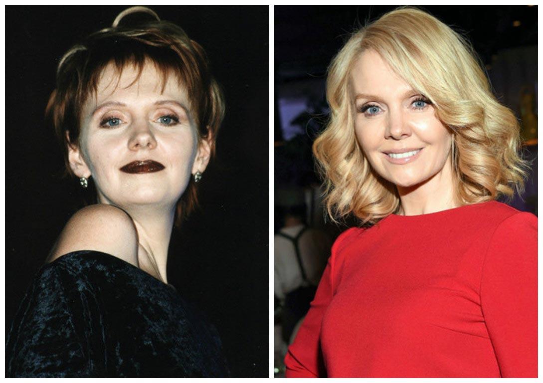 Пластика до и после российских звезд фото