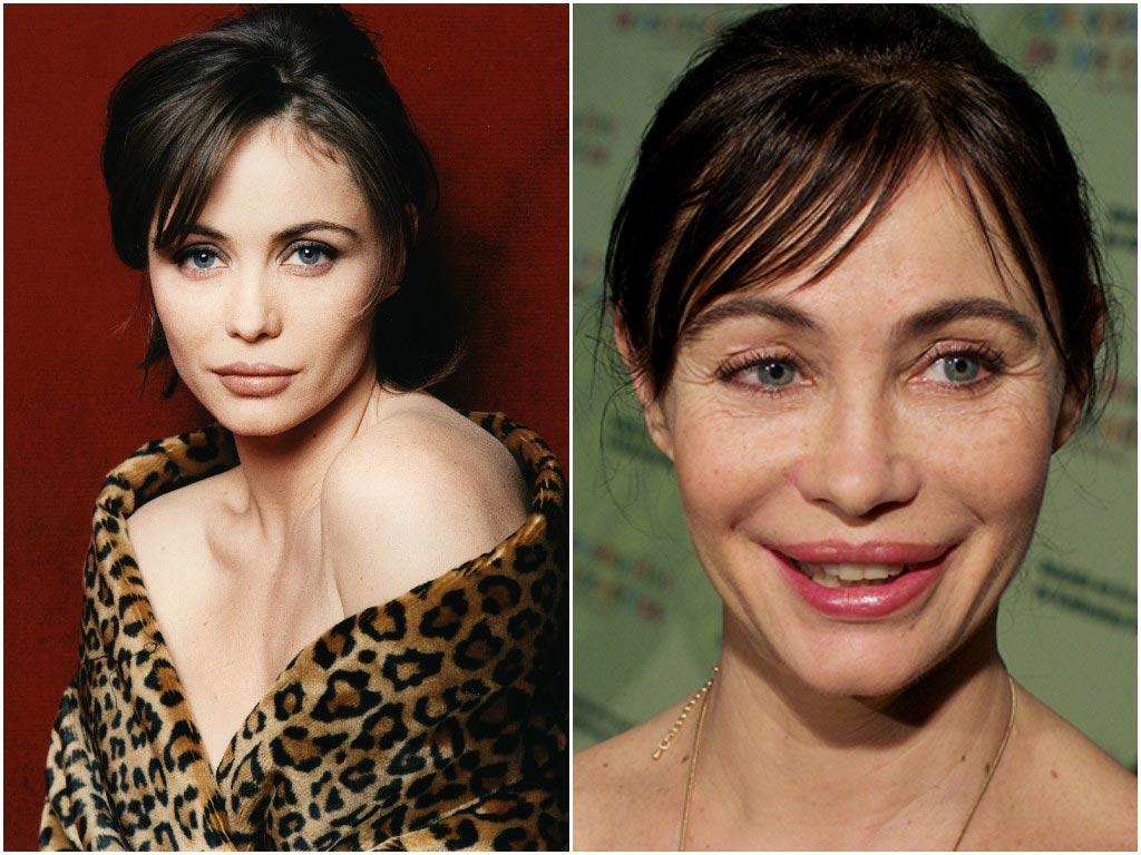 названии торта жены голливудских звезд фото до и после посещают