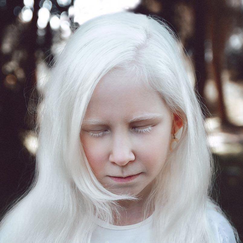 телесериале топтуны, альбиносы люди красивые фото для рабочего