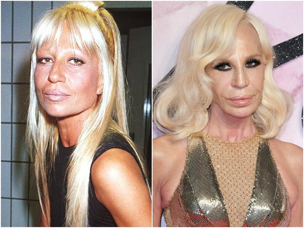 Фото неудачной пластики звезд до и после