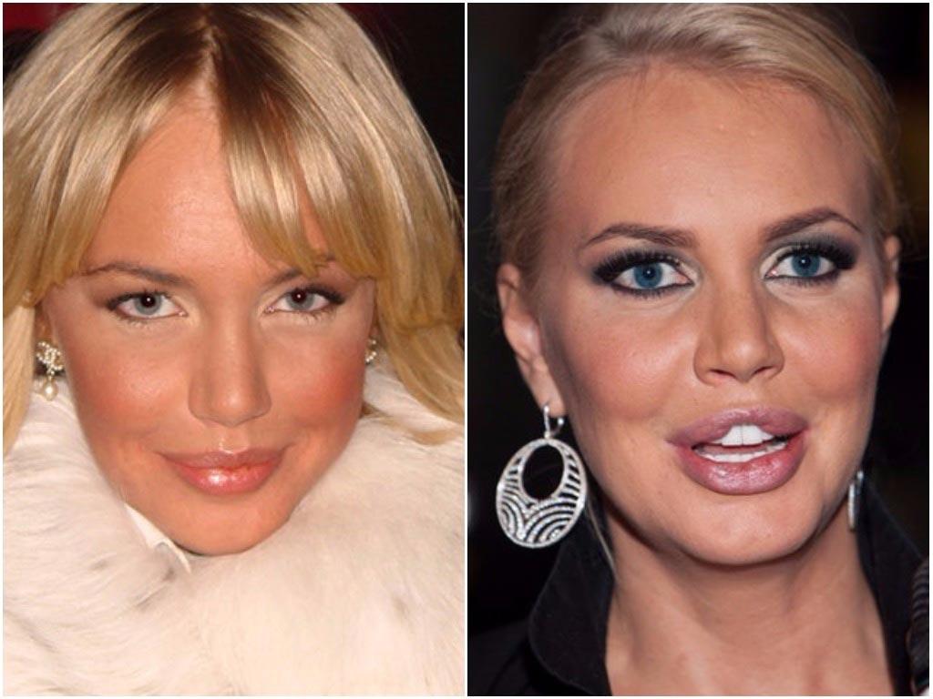фото неудачной пластики звезд до и после собрала фотографии