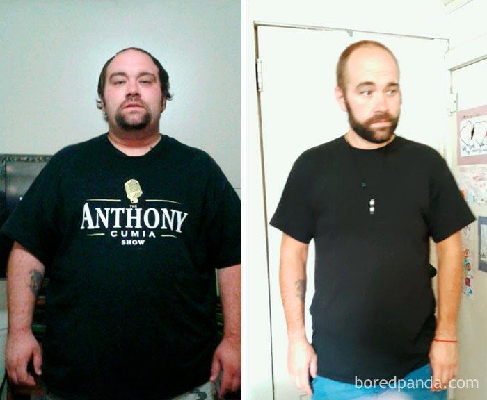 до и после похудения, невероятное похудение