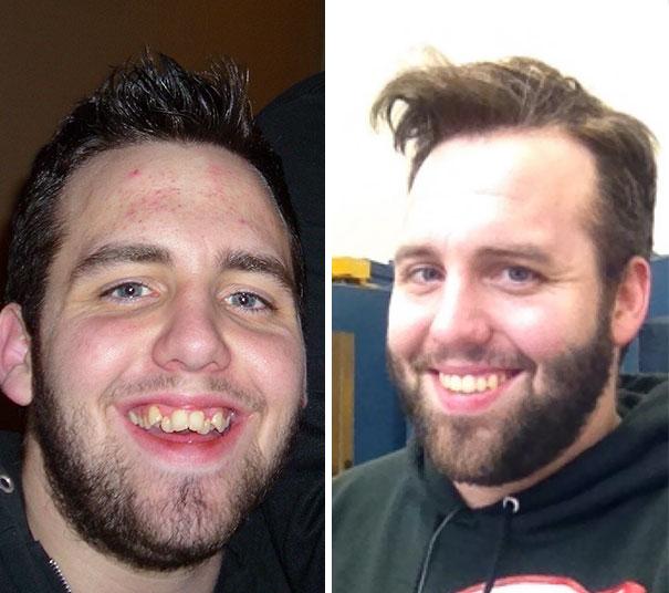 стен, полотка, кривые зубы фото до и после блузки