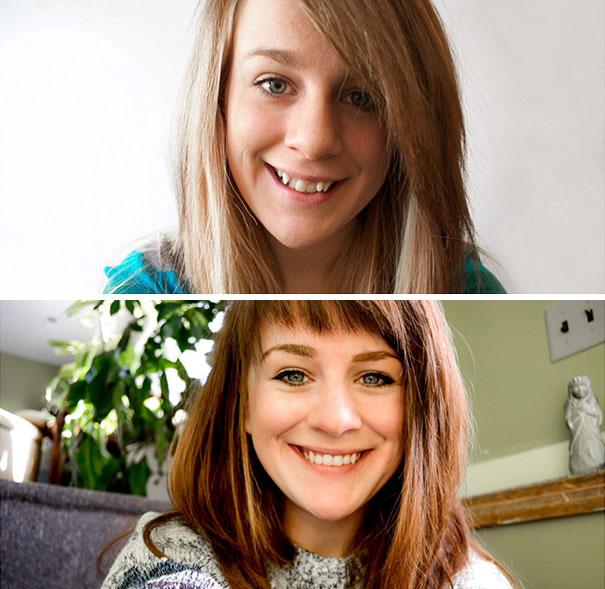 мост кривые зубы фото до и после курения