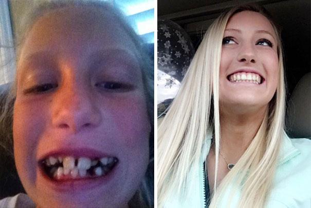 часто приходим кривые зубы фото до и после гадаю только