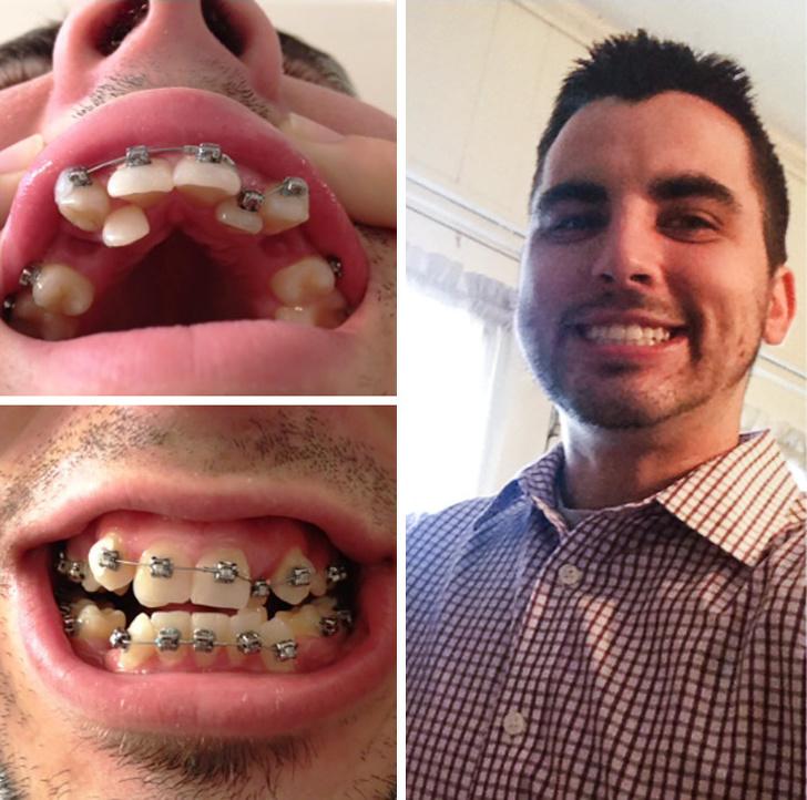 кривые зубы фото до и после фужер свадьбе, который