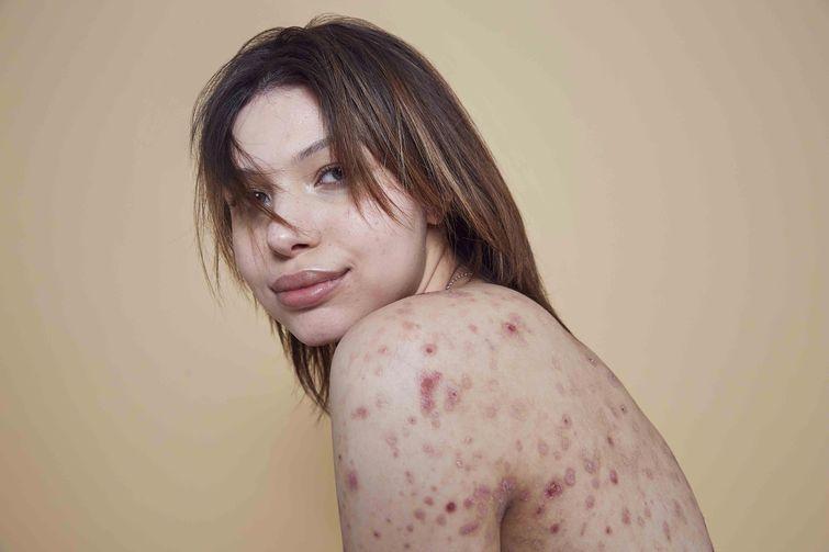Берут ли в модели с проблемной кожей olga reznikova