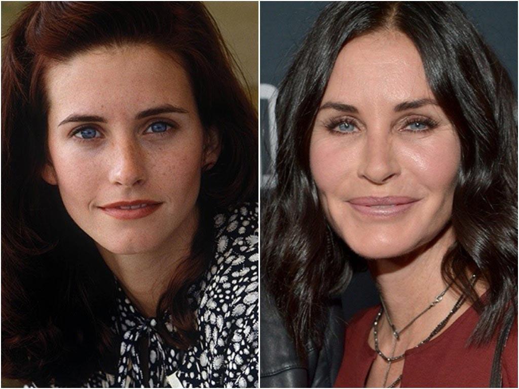 Голливудские звезды до и после пластики фото