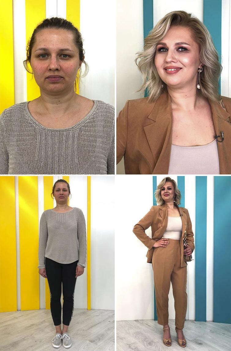 фото до и после в мире моды встречается такая форма